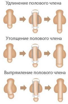 Способ увеличения полового члена своими силами
